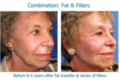 Combo fat and fillers