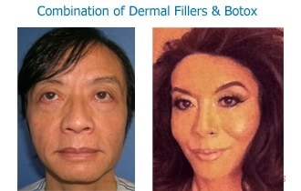 Combination-fillers-botox