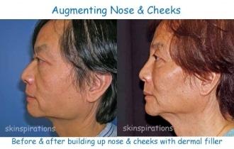 Fill_nose_cheeks_DaHu