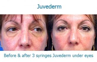Juvederm-eye-LD1