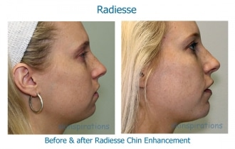 Before and after dermal filler chin augmentation