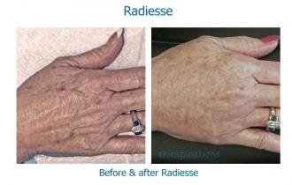 Radiesse-hands-DO1