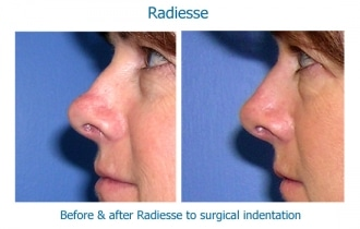 Radiesse-nose-defect1