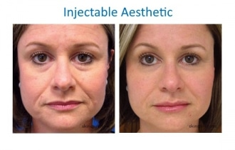 injectable-aesthetic-treatments-photo-skin