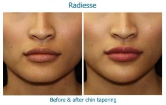 radiesse-chin-taper2