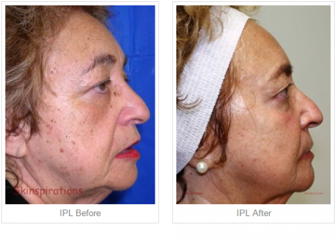 IPL Before - AFter