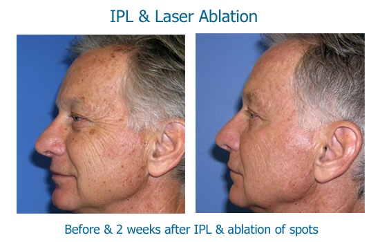IPL ablation Don