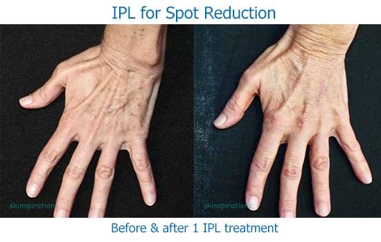 IPL_hand_SK