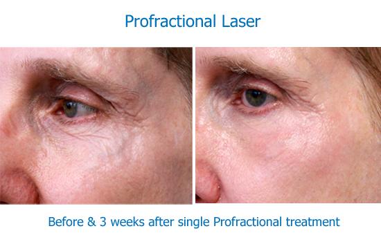 Our Laser Resurfacing Profractional Amp Laser Peel Results