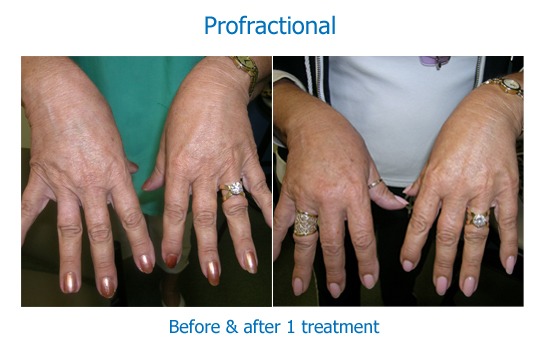 Our Laser Resurfacing Profractional Amp Laser Peel Results