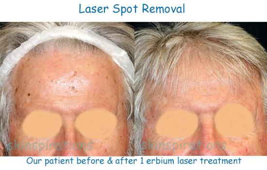 Laser_ablate_forehead_NoBa
