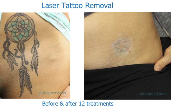 Laser tattoo reduction gallery skinspirationsskinspirations for Tattoo turned black after laser