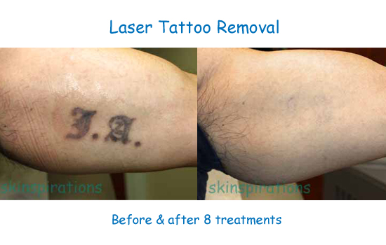 Laser tattoo reduction gallery skinspirationsskinspirations for Natural remedies for tattoo removal