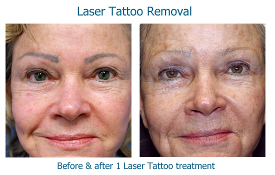 tattoo brows copy