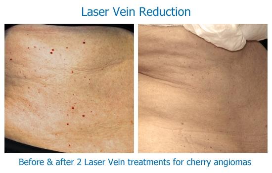 laser-vein-angiomas