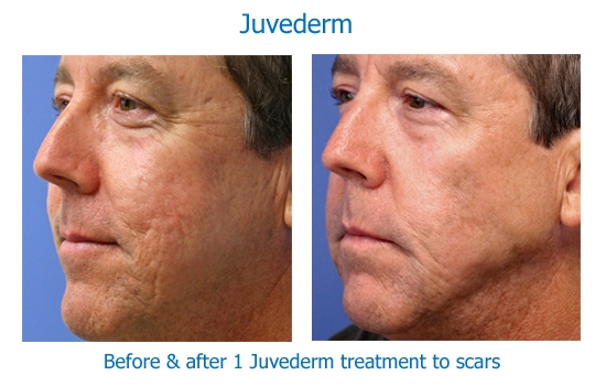 Juvederm scars