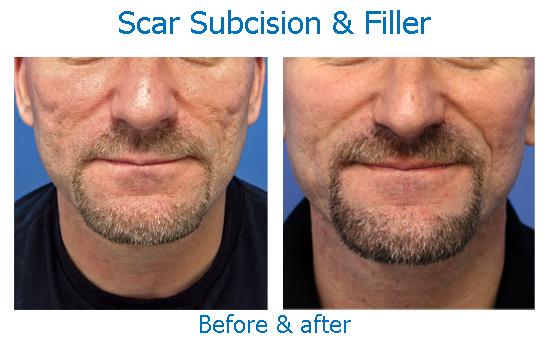 Scar Treatments Skinspirationsskinspirations