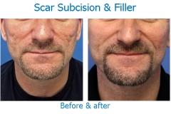 scar sub fill EL_edited-1