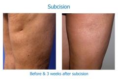 subcision leg