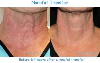 Nanofat_neck_CE