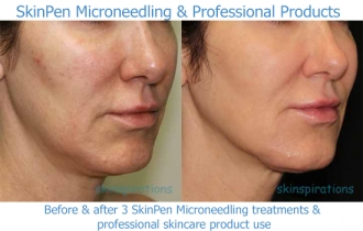 Skinpen_products_PM