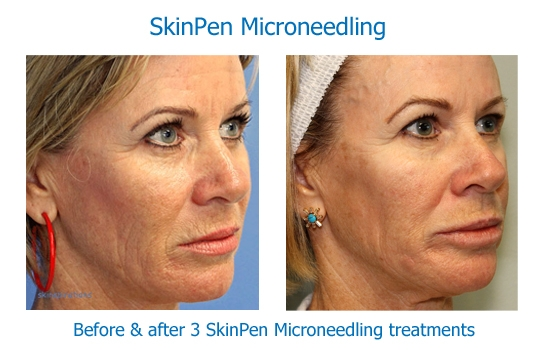 Skinpen 3