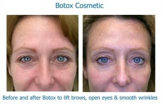 Botox-eyes