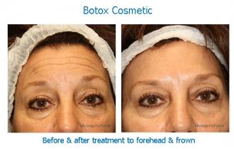 Botox forehead SV_edited-1