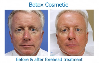 Botox-forehead_edited-1
