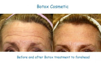 Botox_forehead_GlHu