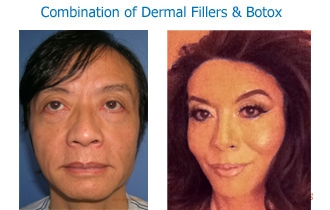 Combination fillers & botox