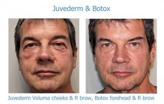 Juv and botox FO