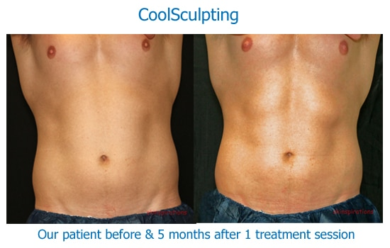 Male abd muscles after CoolSculpting