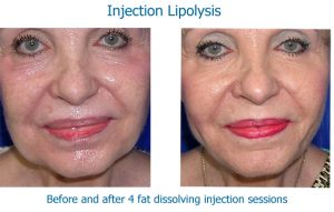 Fat dissolving injection results in jowls