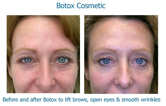 Botox to lift brows and smooth crows feet