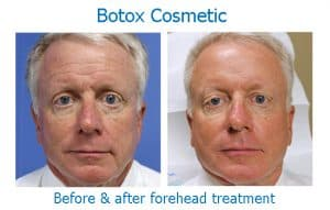 Before and after Botox to a man's forehead wrinkles