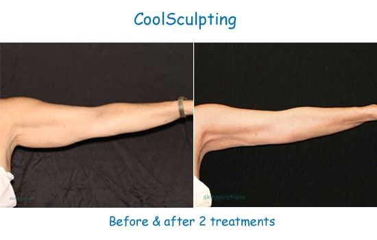 coolsculpting results arms