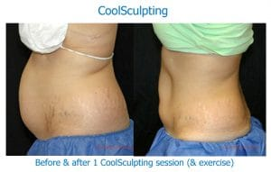 before and after photos of CoolSculpting results on woman's abdomen, in a profile view