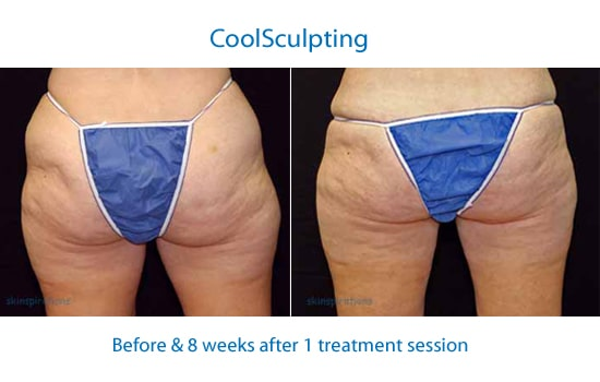 Buttocks before and after coolsculpting contouringl;