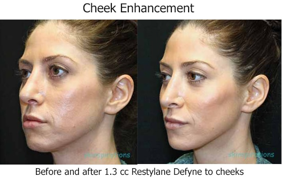 45 degree angles of a face before and after Restylane Defyne