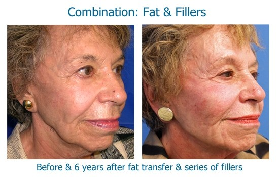 Before and after dermal fillers and fat transfer