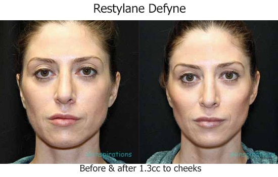 Before and after Restylane Defyne