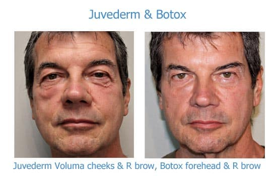 Before and after photos of a man with Botox and Juvederm treatments.