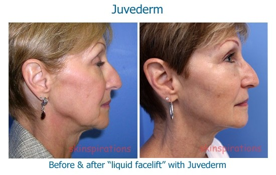 Liquid facelift results