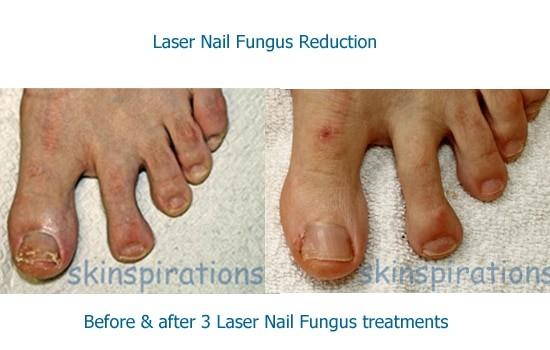 Laser toe nail fungus results