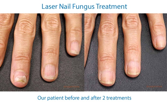 before and after photos showing improvement of fingernails after laser nail fungus treatments
