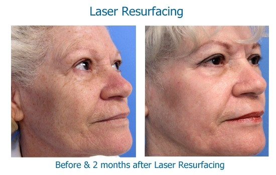 Before and after laser resurfacing