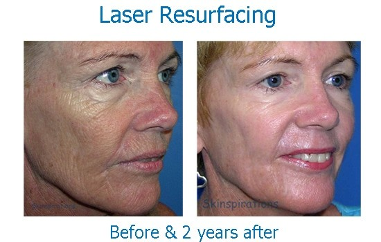 Congratulate, facial resurfacing brands rated confirm. join