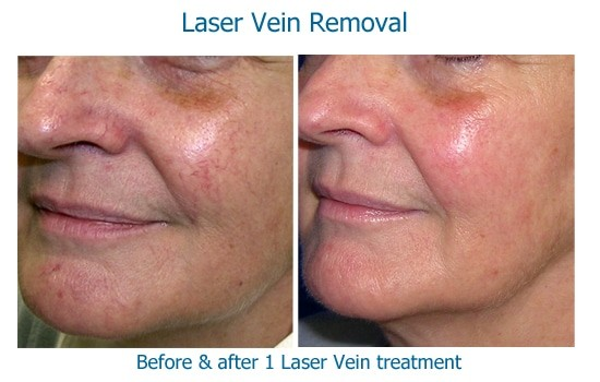 Results of laser vein treatment on cheek