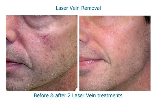 closeup photo of cheek before and after laser vein removal